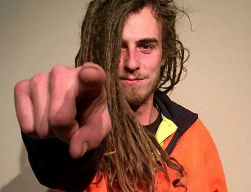 Dreadlocks for Dystrophy